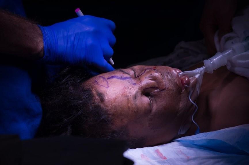 Dallan Jennet接受鼻移植術